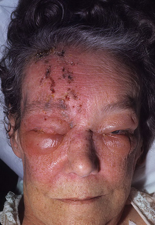 Pictures facial herpes zoster — pic 14