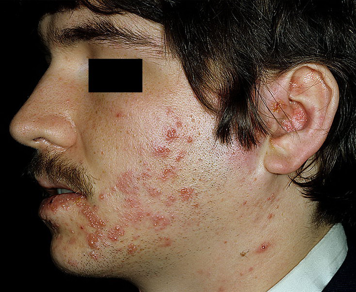 Pictures of facial shingles, mature pussy sauna
