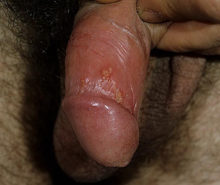 Acroangiodermatitis