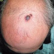 Skin Cancer on Scalp