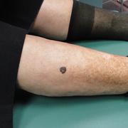 Skin Cancer on Leg