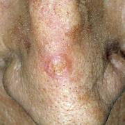 Skin Cancer on Nose