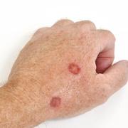 Skin Cancer on Hands