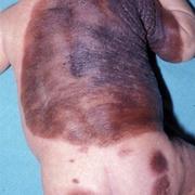 Skin Cancer in Children