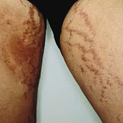 Striae on Thighs