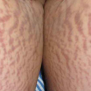 Stretch Marks on Legs