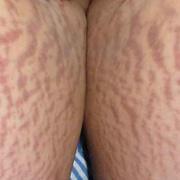 Stretch Marks on Legs