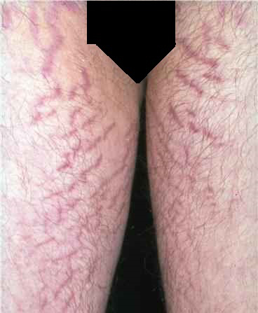 Stretch Marks on Legs Pictures – 12 Photos & Images ...