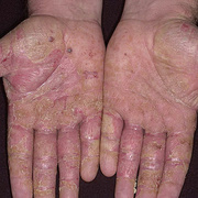 Dyshidrosis on Hands