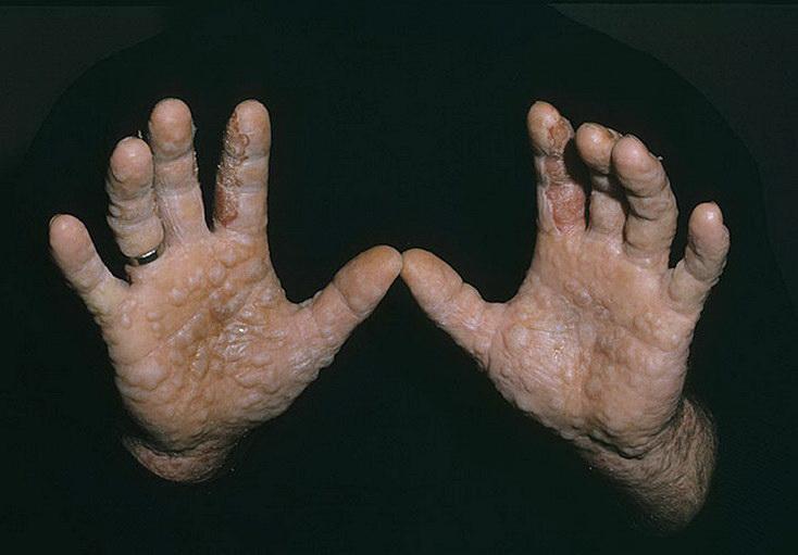 экзема на кистях рук