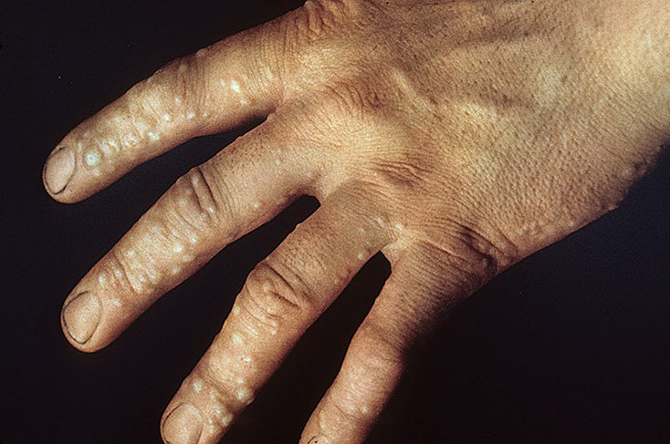 Dyshidrosis on Hands Pictures - 54 Photos & Images ...
