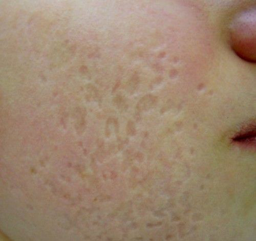 Chicken Pox Scars Pictures – 6 Photos & Images / illnessee.com