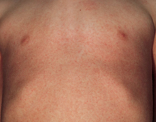 Scarlet Fever Rash Pictures 23 Photos Amp Images