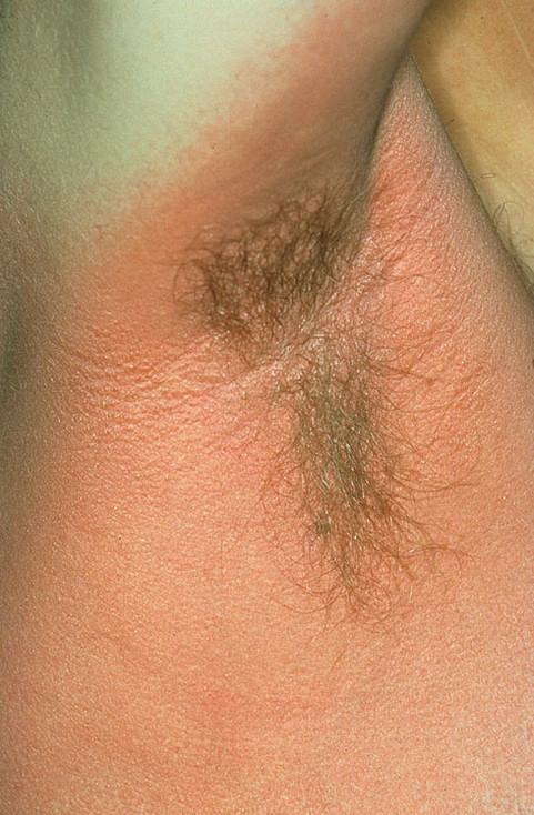 Scarlet Fever Rash Pictures - 23 Photos & Images ...