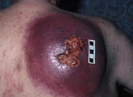 nodular melanoma size #10