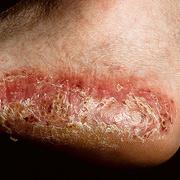 Dyshidrosis Foot