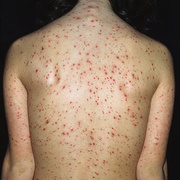 Adult Chickenpox