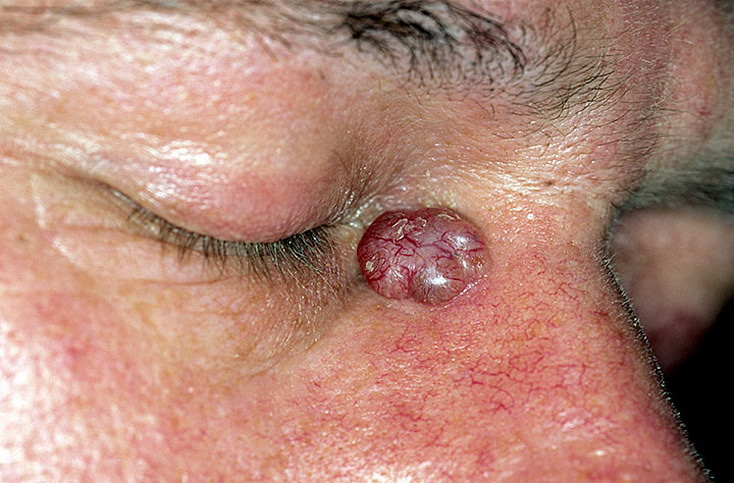 Basal Cell Carcinoma Nose Pictures 54 Photos Amp Images