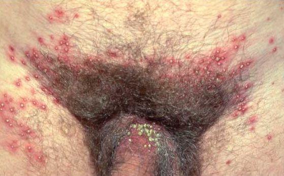 Erotic spank pic
