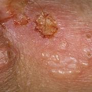 Herpes in Men