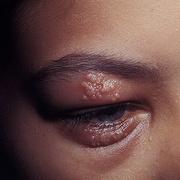 Herpes Simplex on Eyelid