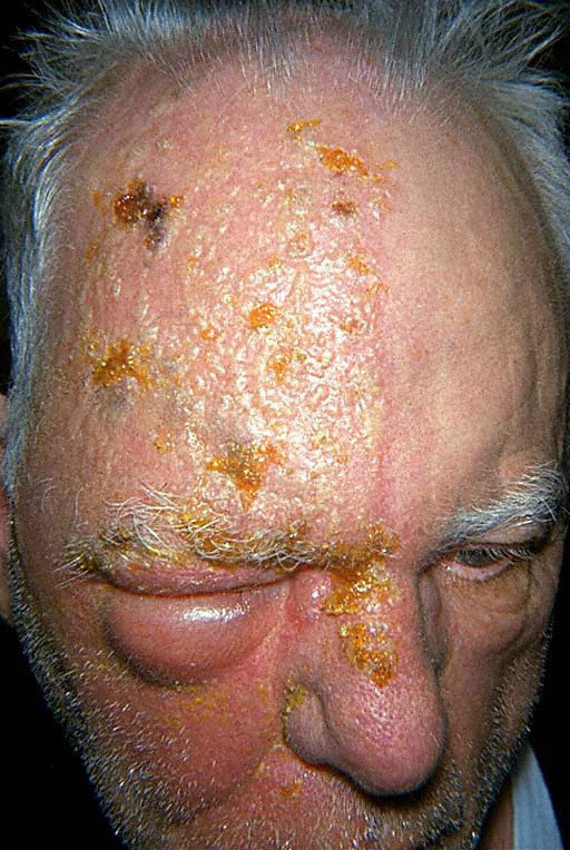 Herpes Simplex on Eyelid Pictures – 14 Photos & Images ...