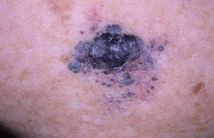malignant melanoma pictures � 54 photos amp images