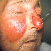 Erysipelas on Face Symptoms