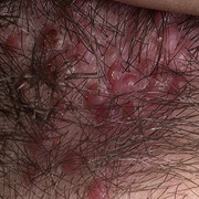 Folliculitis on Head