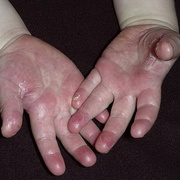 Scarlet Fever Symptoms in Children