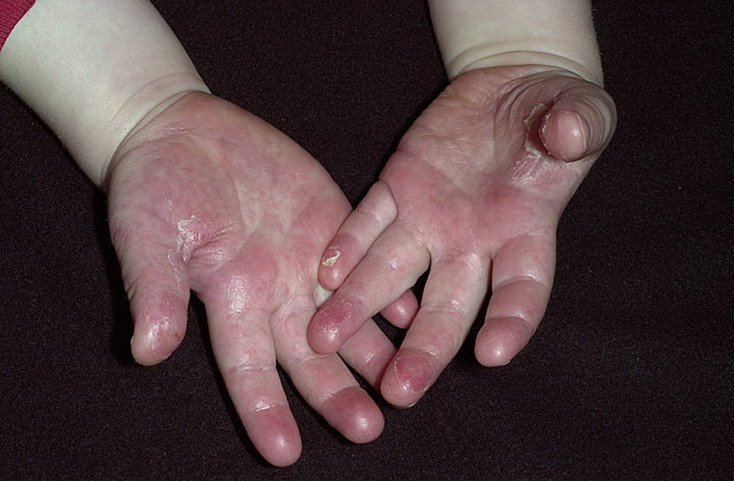 Scarlet Fever Symptoms in Children Pictures – 21 Photos ... | 734 x 481 jpeg 85kB