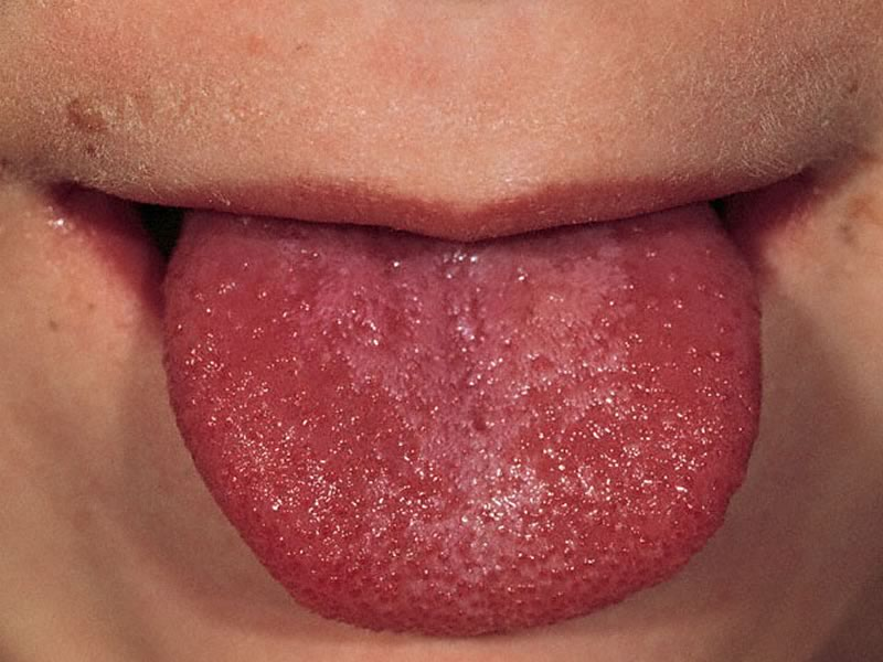 Scarlet Fever Is Back and Every Parent Needs to Watch Out for These Warning Signs