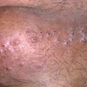 Herpes Symptoms in Men
