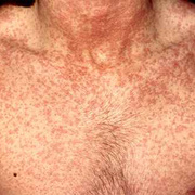 Symptoms of Rubella in Adults