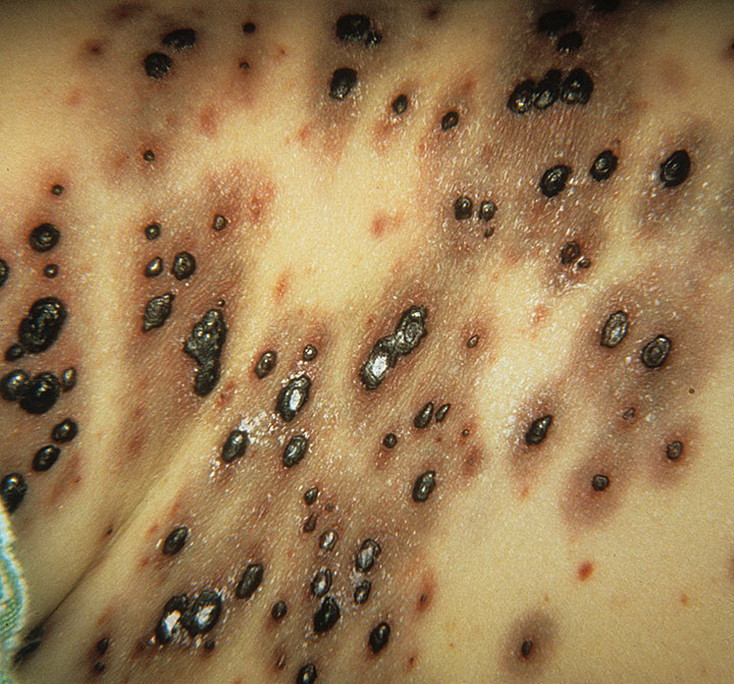 Adult Chicken Pox Symptoms Pictures – 39 Photos & Images ...Severe Adult Chicken Pox