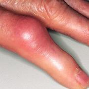 Thrombosis Hand