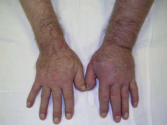 Thrombose Arm