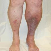 Thrombosis leg