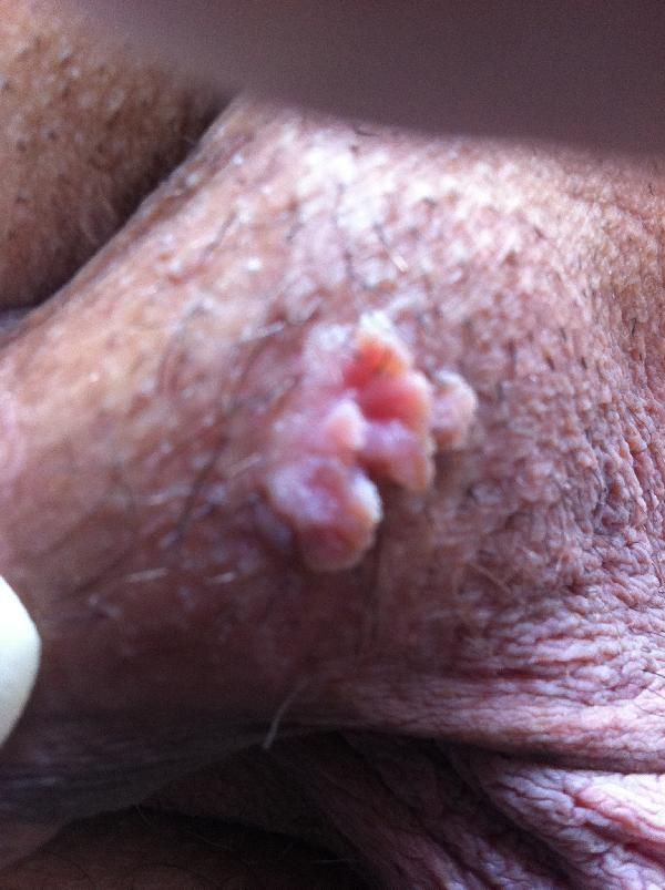 Difference Between Genital Warts And Herpes