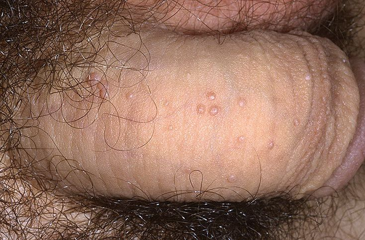 Фолликулы на пенисе