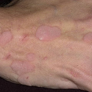 Papilloma on Hands