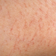 Eczema Early Stage