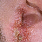 Eczema on the Ears
