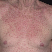 Eczema on the Body