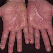 Eczema on the Palms