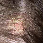 Eczema on Head