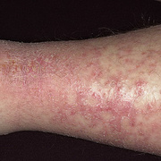 Eczema on Shin