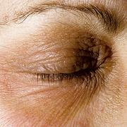 Eczema of the Eyes