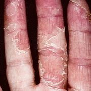 Eczema Between Fingers