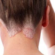 Eczema Scalp